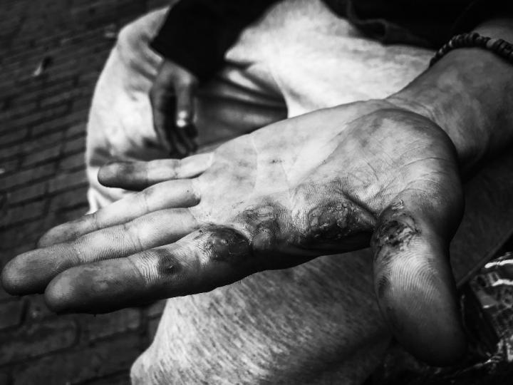 Consecuencias del basuco en las manos de Enrique, después de 7 años viviendo en las calles