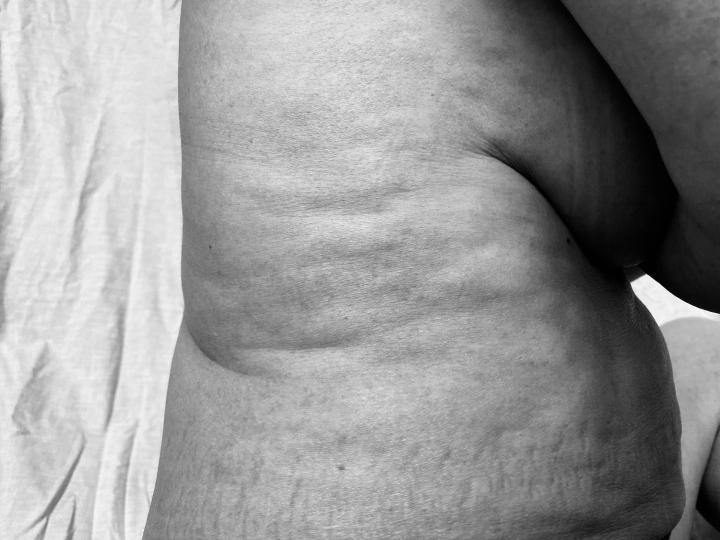 Mi cuerpo me… ¿repugna?