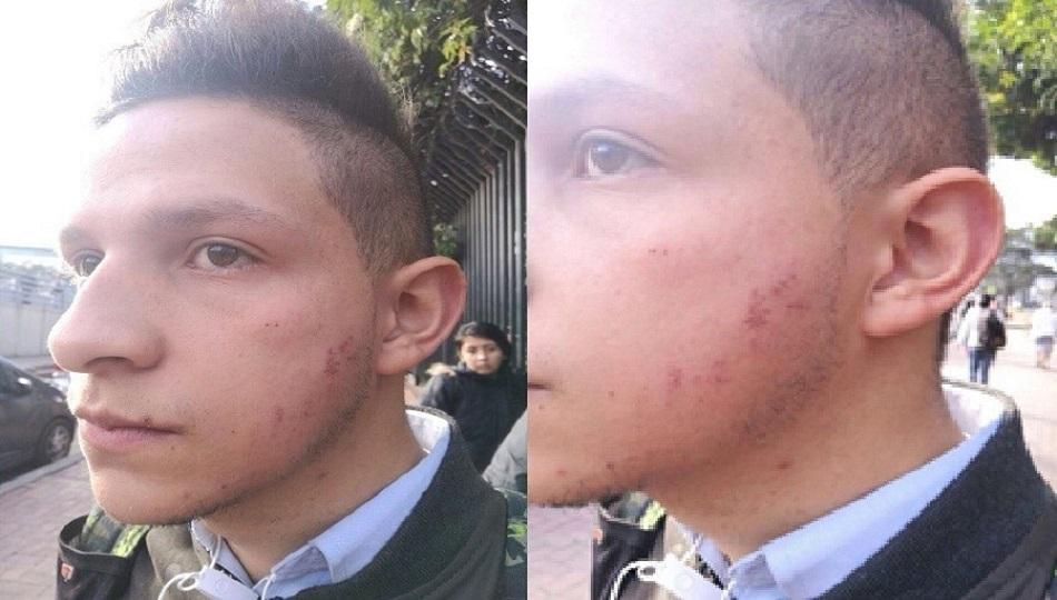 David Montoya, Integrante de la comunidad LGTBI, muestra las heridas en el rostro.