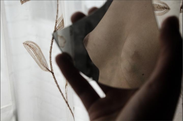 Foto referencia de una mastectomía