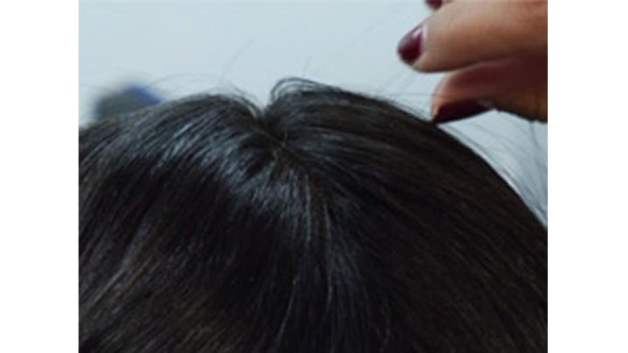 De la conducta cotidiana al trastorno de quitarse los pelos